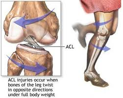 aclruptureimage