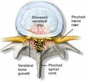 Stenosis Pain Cause